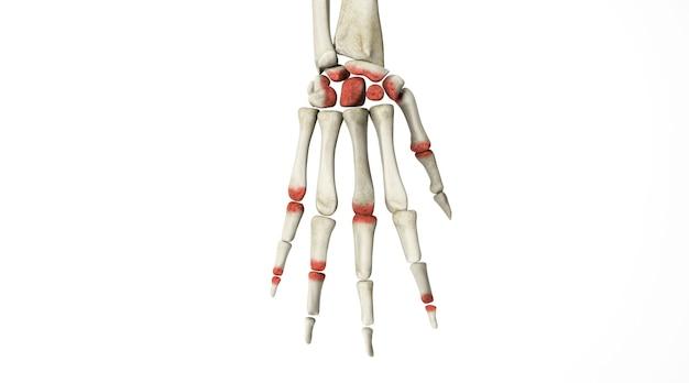Renderização do cinema 4d de lesão óssea na articulação da mão humana isolada no fundo branco