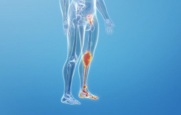Renderização em cinema 4d da doença do menisco da articulação óssea da perna humana
