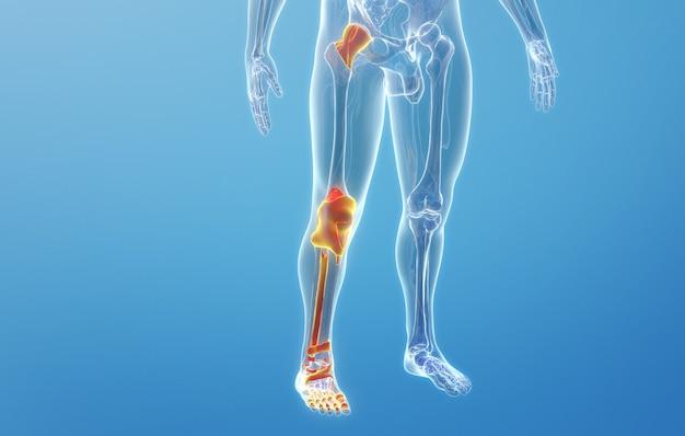Renderização em cinema 4d de ossos de pernas humanas e doenças articulares