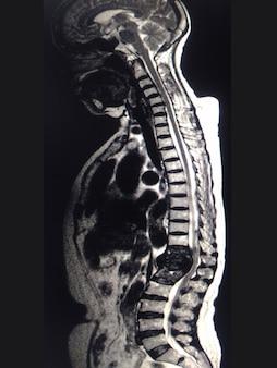 Ressonância magnética da coluna mri fratura de t12.