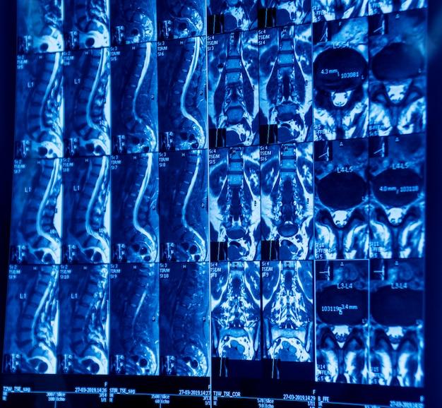 Ressonância magnética da coluna vertebral de um paciente com dor crônica nas costas.