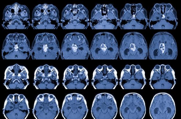 Ressonância magnética do cérebro com e sem meio de contraste resultados: há uma massa lobulada de 35 cm de diâmetro