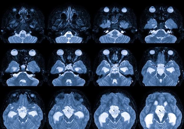Ressonância magnética do cérebro com meio de contraste descoberta de que há uma massa lobulada de 35 cm de diâmetro