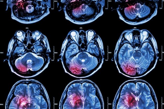Ressonância magnética do cérebro