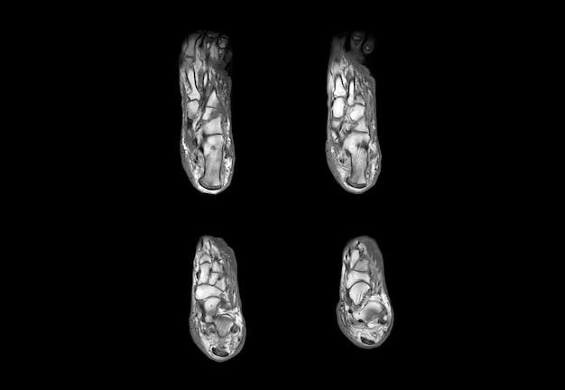 Ressonância magnética do pé e imagem de raio-x de tomografia computadorizada