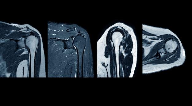 Ressonância magnética ombro história de ruptura do manguito rotador com suspeita de lipoma do ombro esquerdo achados de ruptura do tendão supraespinhal. conceito de imagem médica.