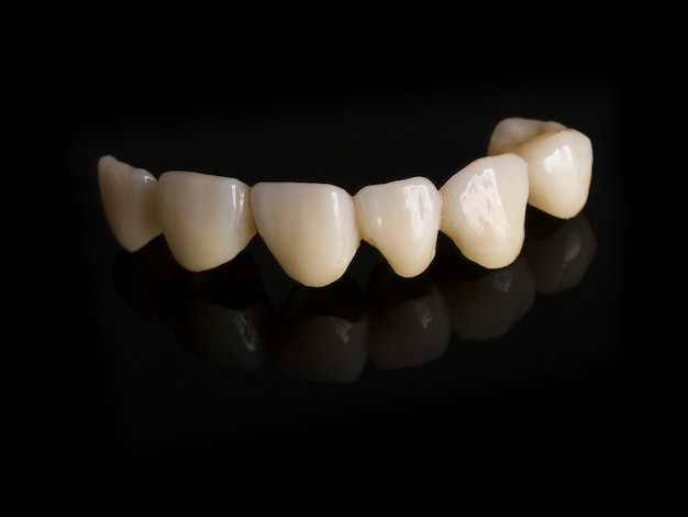 Restaurações monolíticas de zircônia implante de arco completo suportado com a carga cerâmica em vestibular