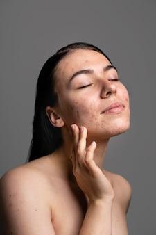 Retrato de jovem confiante com acne
