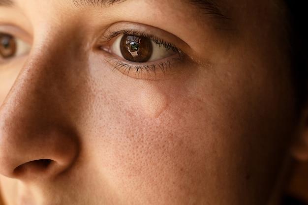 Retrato de menina ferida picada de abelha no rosto sob os olhos