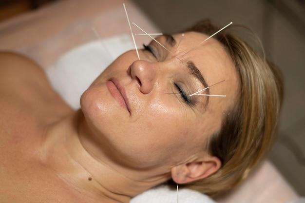Retrato de mulher em salão fazendo terapia de acupuntura