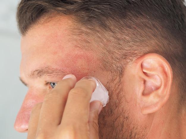 Retrato de um homem com vespa picada na cabeça coloca gelo