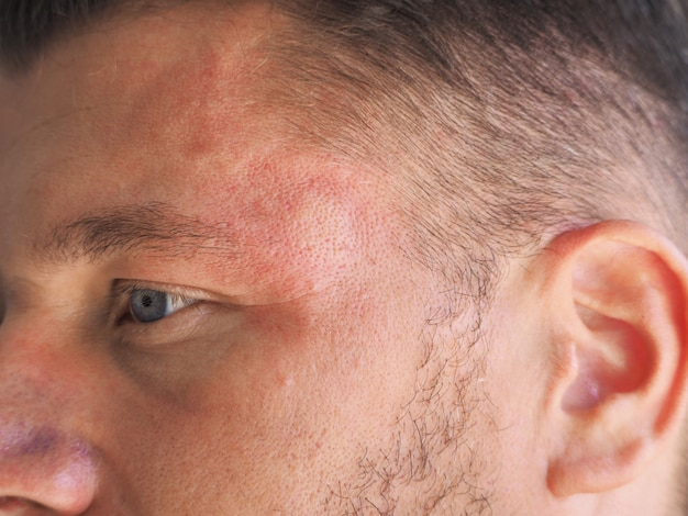 Retrato de um homem com vespa picada na cabeça