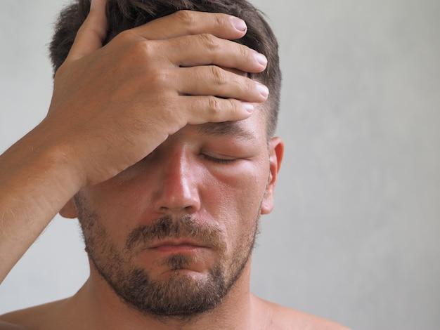 Retrato de um homem picado por uma vespa na testa