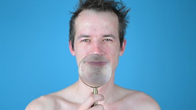 Retrato de um jovem mostrando acne através de uma lupa na parede azul