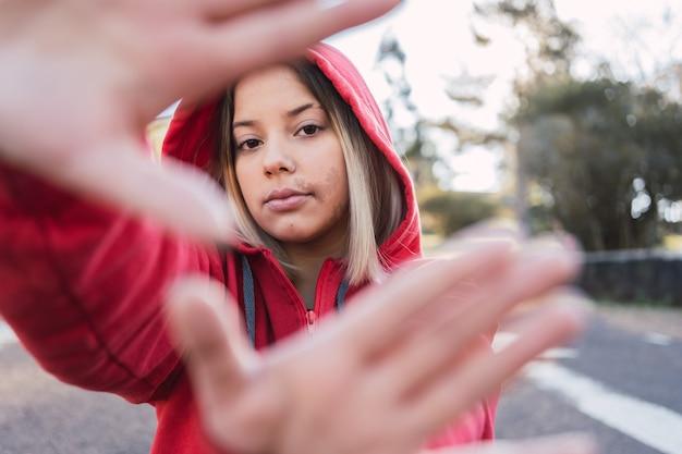 Retrato de uma adolescente com uma marca de nascença no rosto com as mãos na frente do rosto.