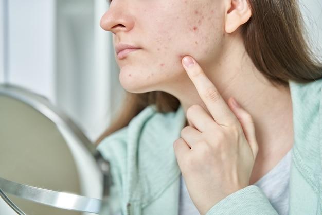Retrato de uma jovem adolescente com problemas para verificar a pele e tocar o rosto irritado