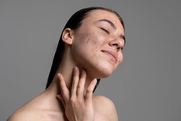 Retrato de uma jovem bonita com acne