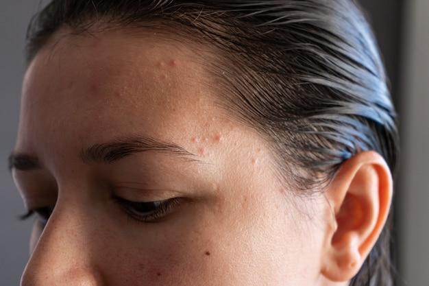 Retrato em close-up de uma menina espremendo uma espinha na testa