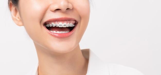 Rosto de uma jovem mulher asiática sorridente com aparelho nos dentes, tratamento ortodôntico.