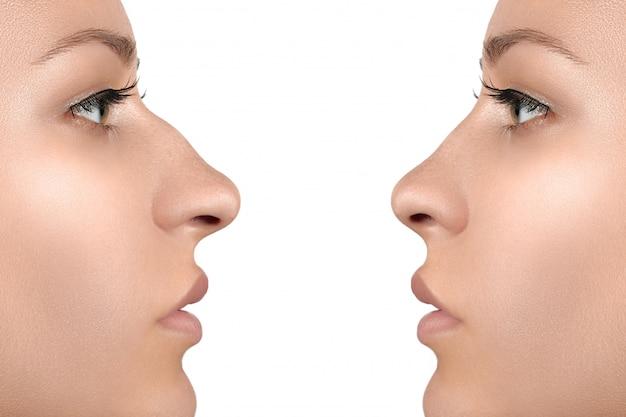 Rosto feminino antes e depois da cirurgia plástica no nariz
