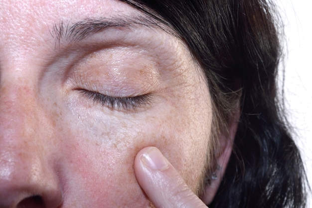 Rugas nos olhos de uma mulher de meia idade 40-45 anos