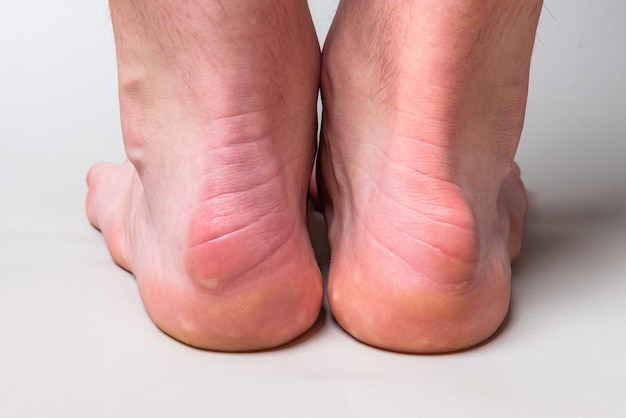 Saliência na parte de trás do osso do calcanhar chamada de deformidade de haglund na parede cinza.