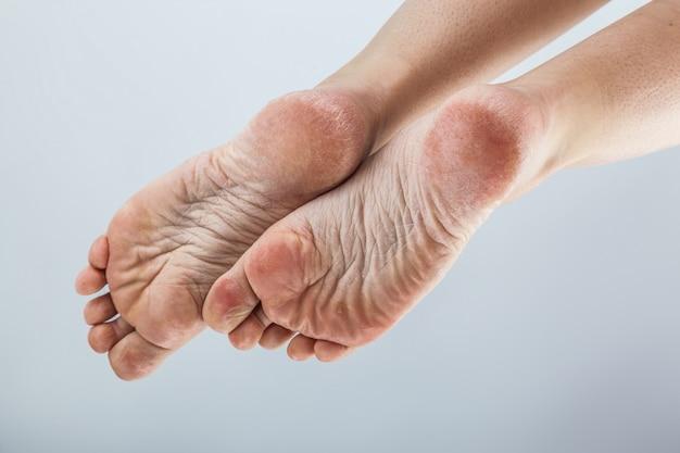 Saltos femininos de pele desidratada