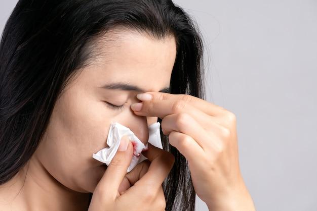 Sangramento nasal, mulher que sofre de sangramento do nariz e usa papel de seda