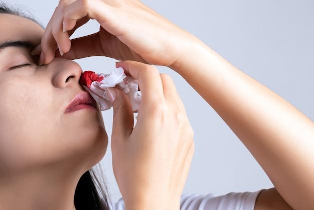 Sangue nasal, uma jovem mulher com um nariz sangrando