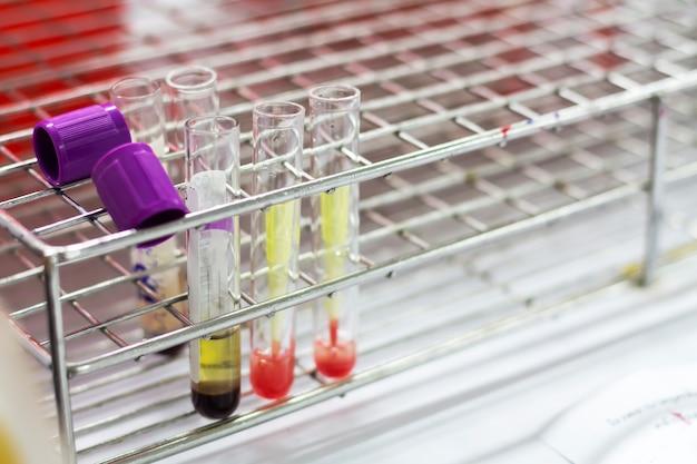 Sangue no tubo de ensaio para uso como amostra de teste.