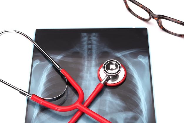 Saúde do dia mundial da saúde e medicina estetoscópio vermelho no filme de raio-x