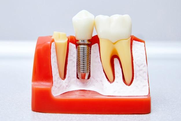 Seção de um implante dentário