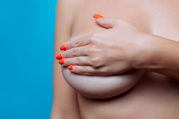 Seios grandes de uma mulher sexy fecham a correção plástica e o conceito de cirurgia