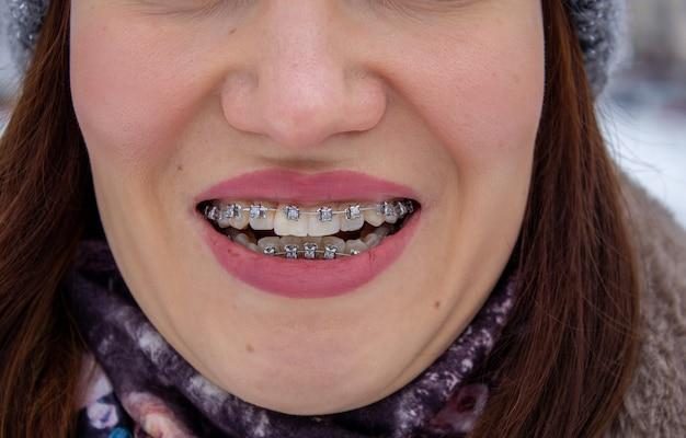 Sistema brasket na boca sorridente de uma garota, macrofotografia dos dentes. rosto grande e lábios pintados. aparelho nos dentes da menina