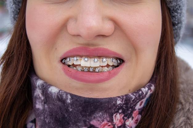 Sistema brasket na boca sorridente de uma garota, macrofotografia dos dentes. rosto grande e lábios pintados