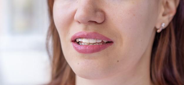 Sistema brasket na boca sorridente de uma menina, macrofotografia dos dentes, close-up dos lábios