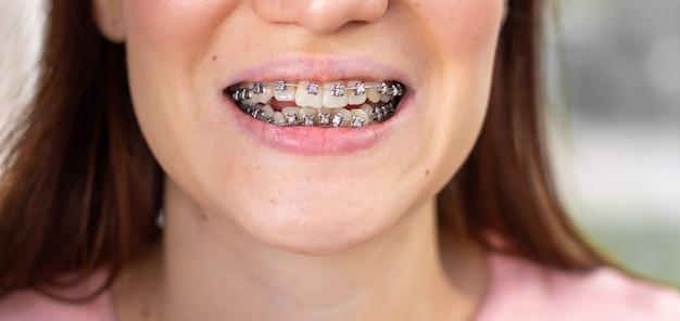 Sistema brasket na boca sorridente, dentes de foto macro, lábios de close-up, foto macro.