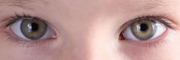 Sobrancelhas e olhos de bebê em close parecem retos.