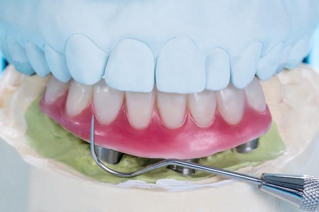 Sobredentadura suportada por implantes dentários / closeup