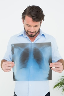 Sorrindo, jovem, segurando, pulmão, raio x