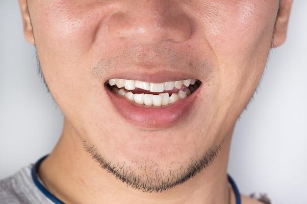 Sorriso feio problema dental