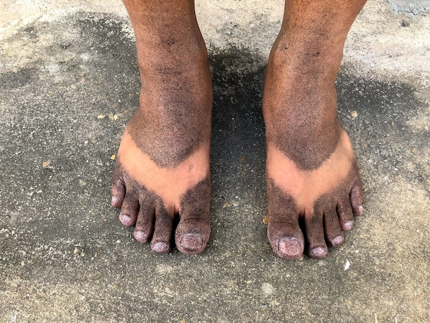 Spray preto nos pés.