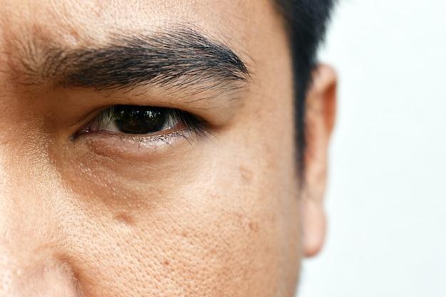 Superfície jovem asiático cara pele depois de não dormir