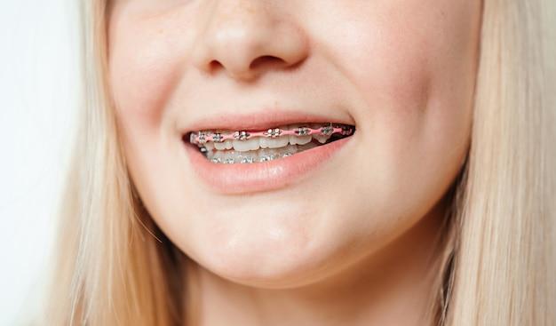 Suspensórios de metal com elásticos rosa em close-up dos dentes de uma jovem loira, tratamento ortodôntico