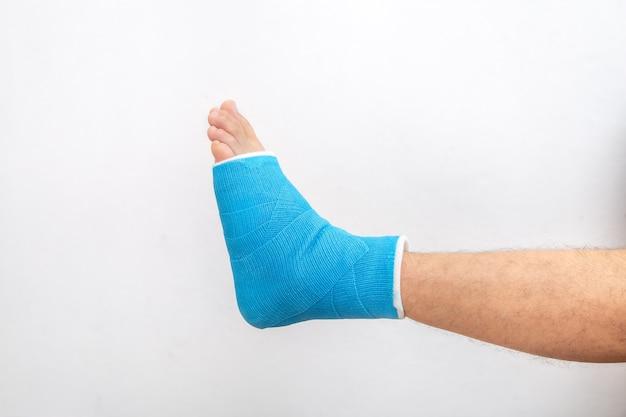 Tala azul no tornozelo. perna enfaixada elenco em paciente do sexo masculino em fundo branco isolado. conceito de lesão esportiva.