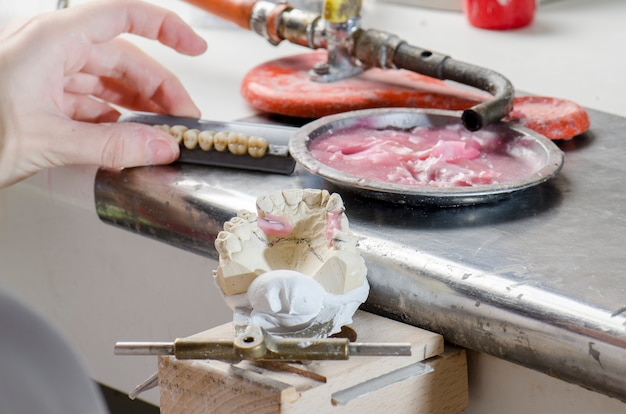 Técnico dental fazendo próteses parciais de resinas acrílicas.