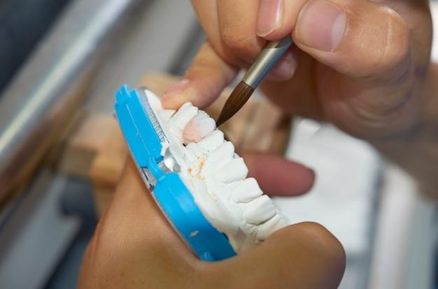 Técnico dental usando um pincel com implantes dentários de cerâmica em seu laboratório