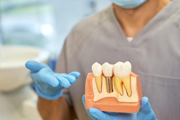 Técnico dentário qualificado posando com um modelo de implante dentário