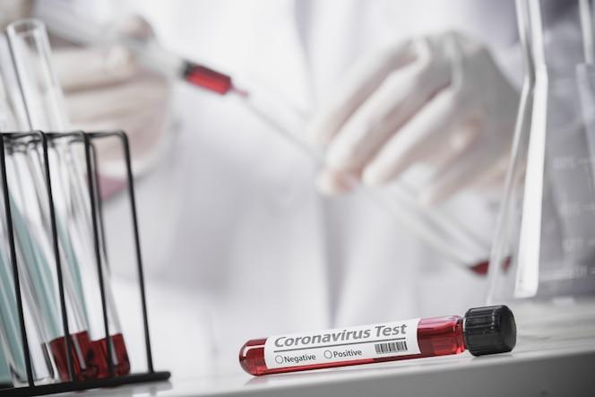 Testando amostras de sangue de pacientes para surto de coronavírus (covid-19) no laboratório, novo coronavírus 2019-ncov