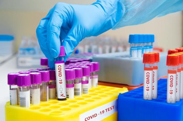 Teste de coronavírus de laboratório.